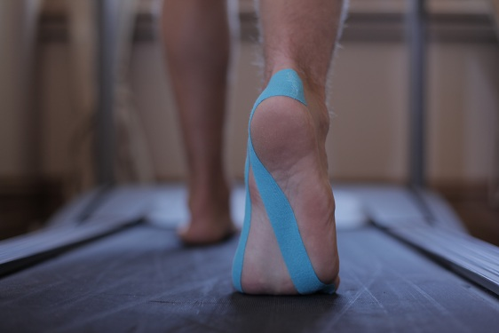 Kinesio taping on walking foot